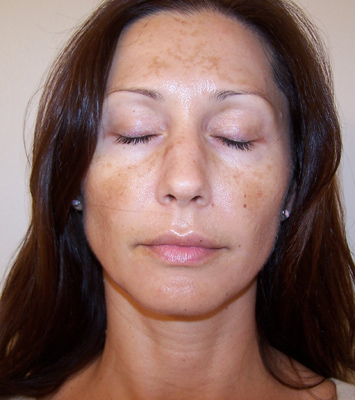 What Causes Hyperpigmentation